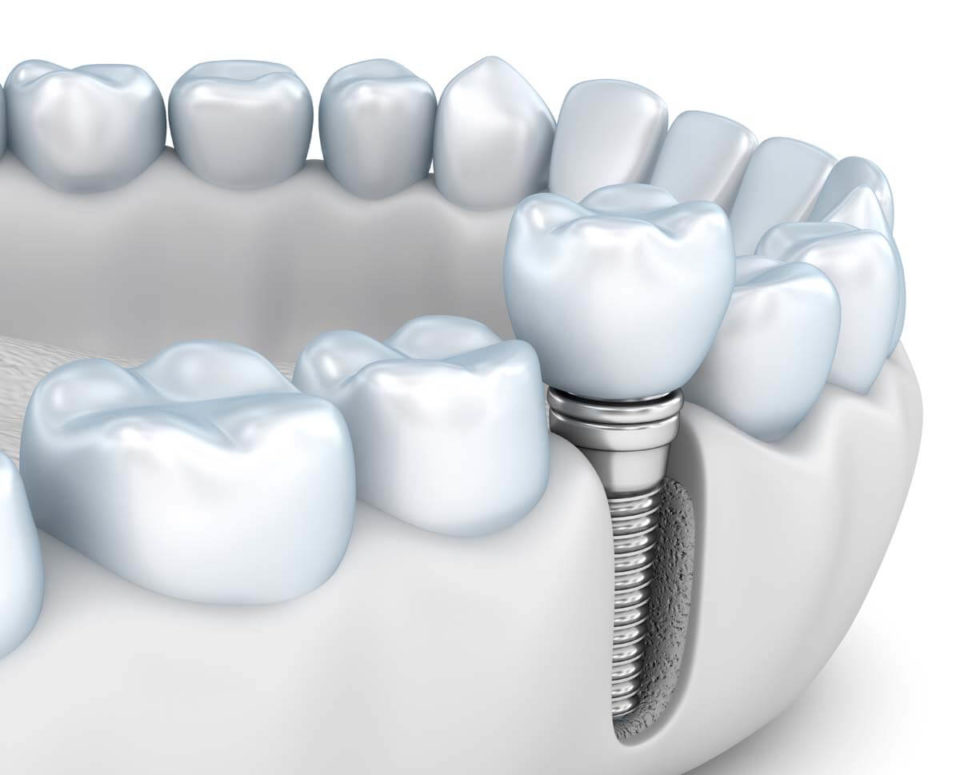 Implanty zębowe Straumann