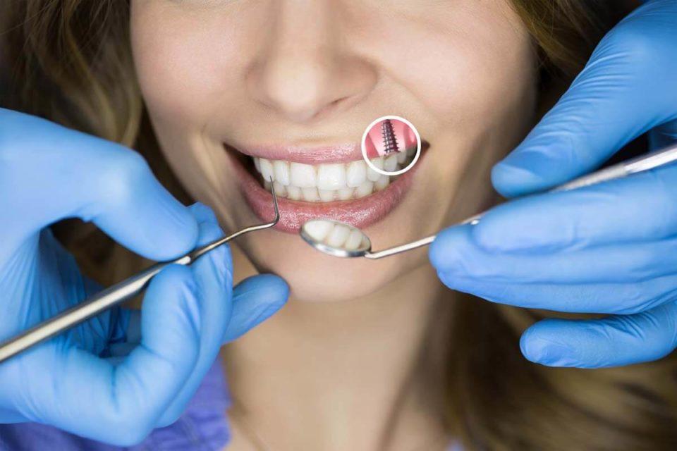 Implanty zębów, a zabiegi medyczne i kosmetyczne