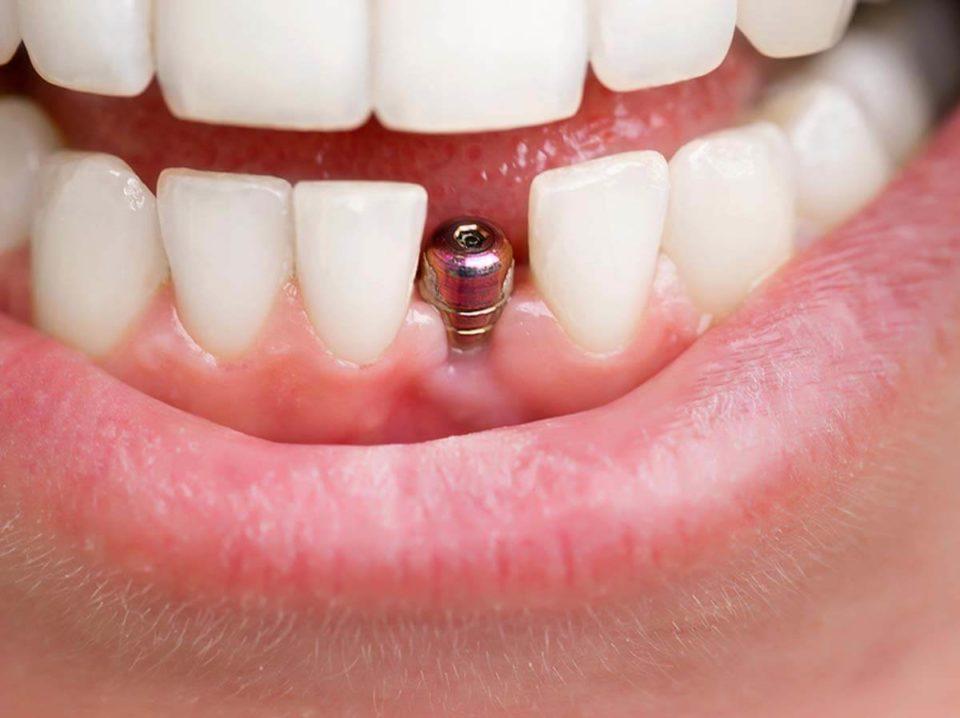 Implanty zębów – zalecenia, jak wygląda, etapy leczenia