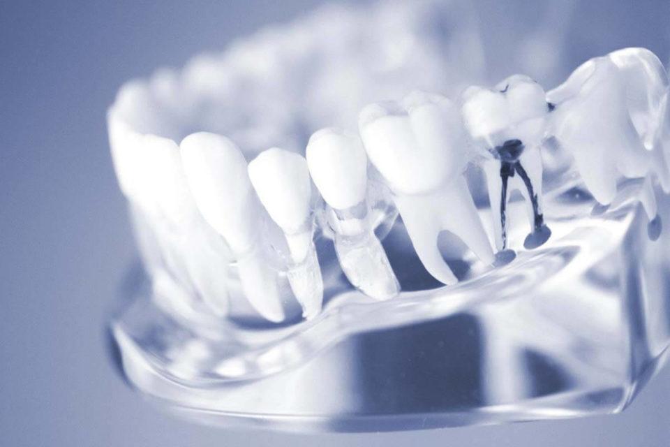 Leczenie kanałowe zęba – co to jest i na czym polega