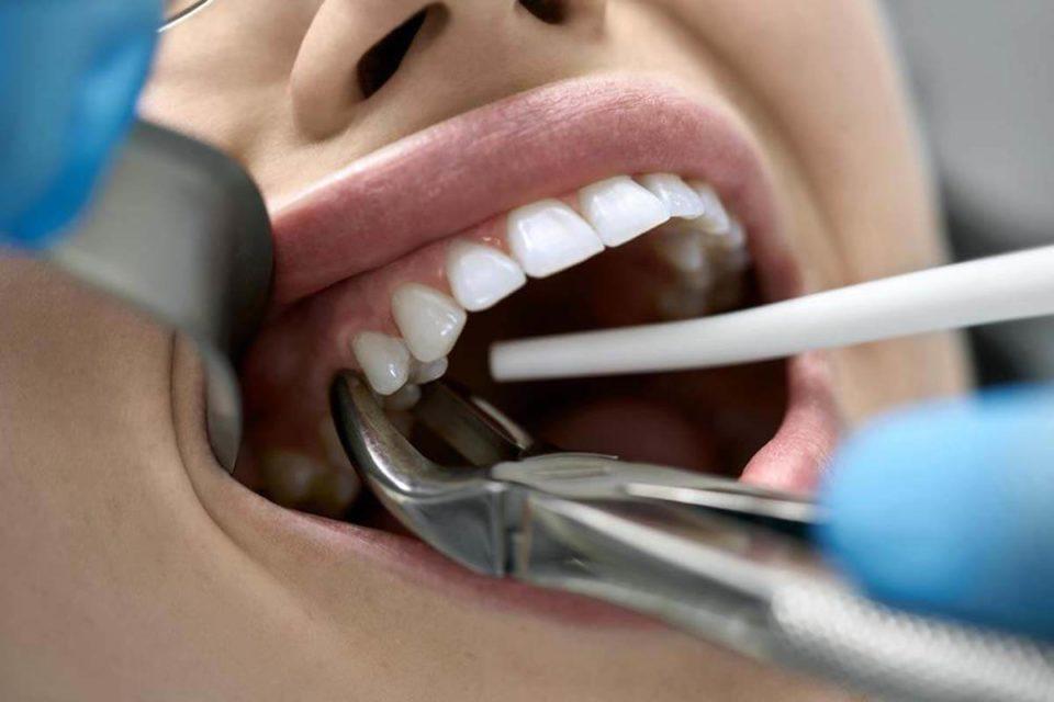 Usuwanie zębów w pigułce